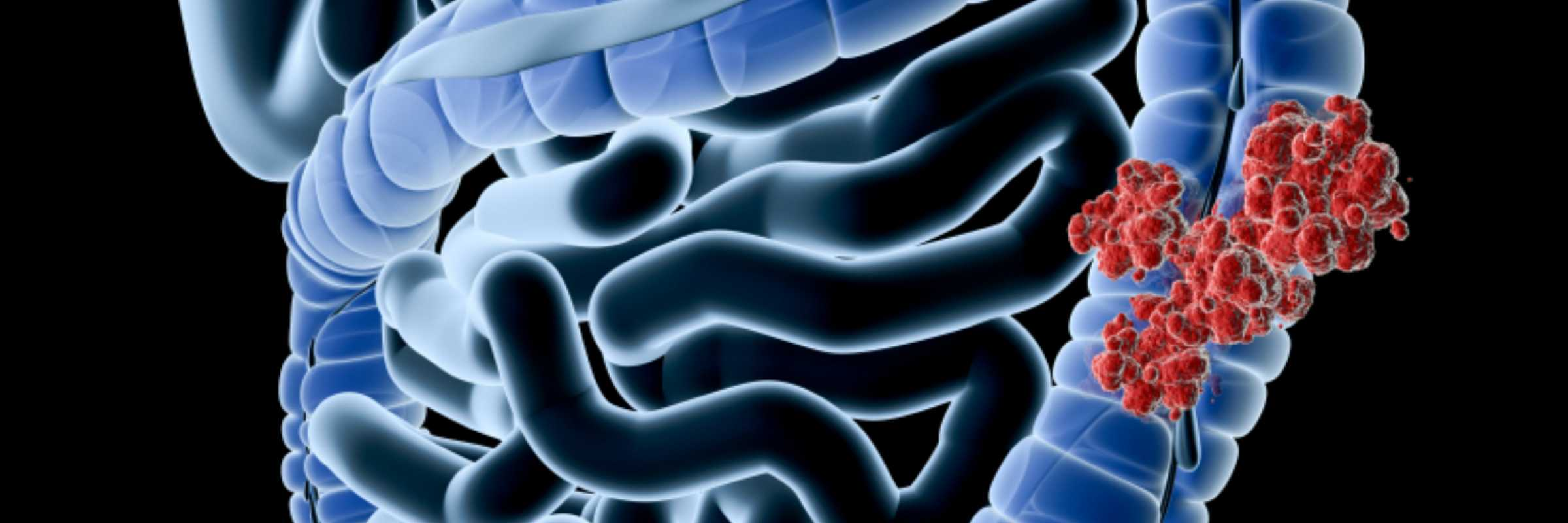 bacteria within the digestive system