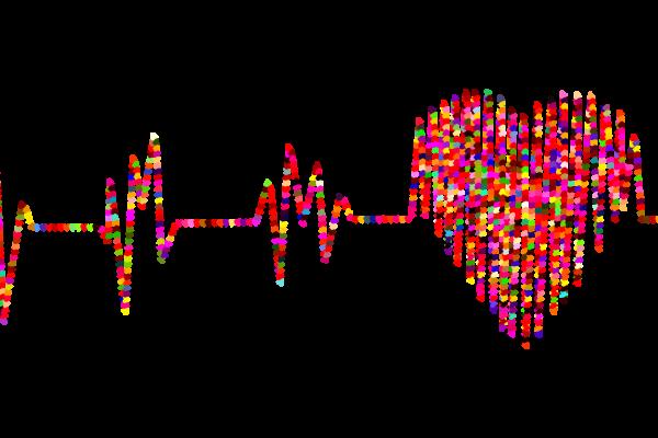 Electocardiogram